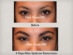Eyebrow Transplant with real hair using the Neograft